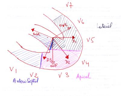 cardiopathie ischémique avec ondes q et t